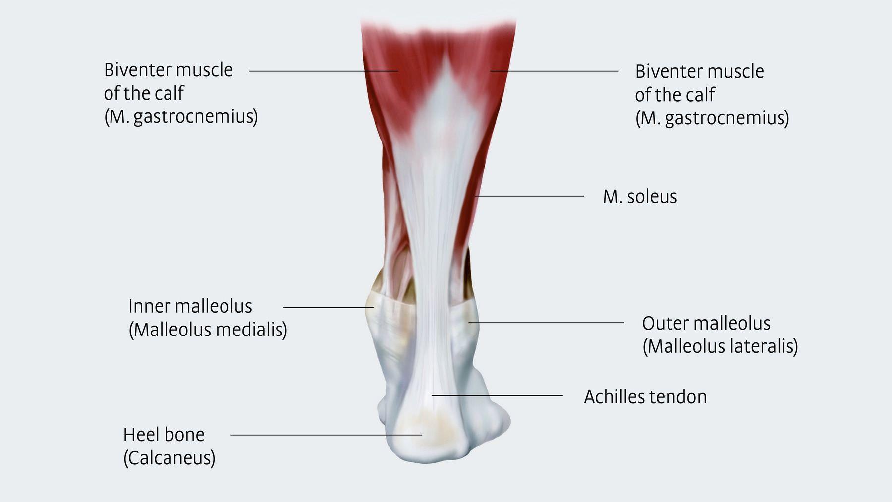 Achilles Repair